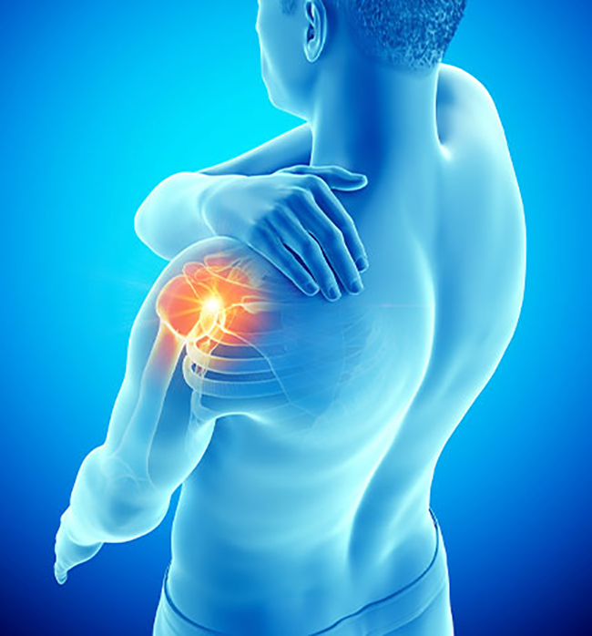 fysiotherapie bij een frozen shoulder