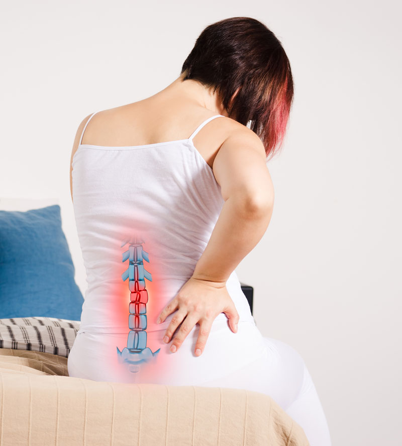 ehandeling van een hernia door middel van fysiotherapie
